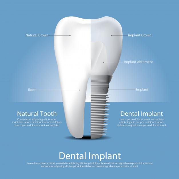 Sodobne zobozdravstvene rešitve