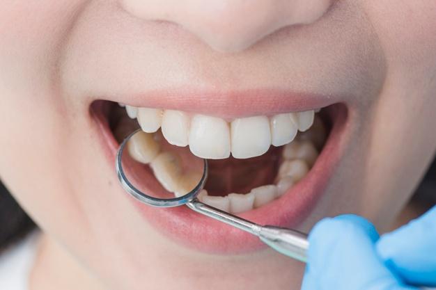 Zobni aparati različnih vrst